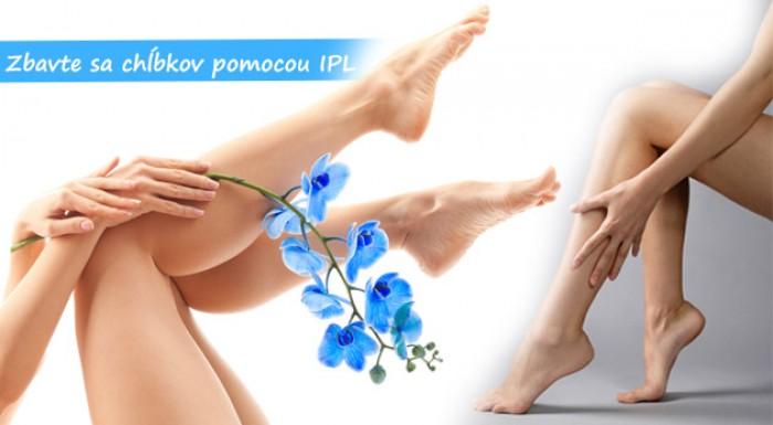 IPL epilácia - účinná metóda, s ktorou sa zbavíte nežiadúcich chĺpkov