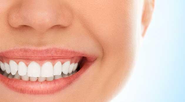 Neperoxidové bielenie zubov v Centre Vitality a Zdravia