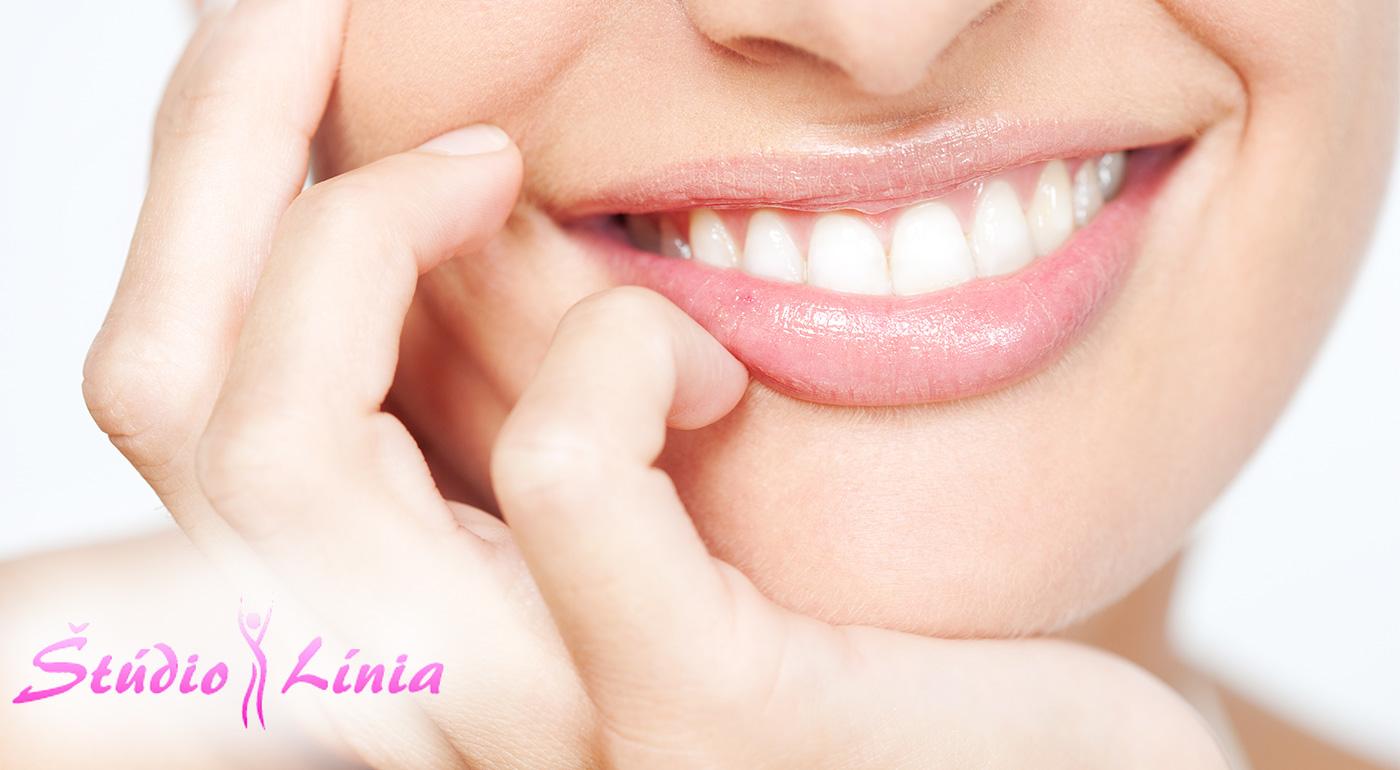 Šetrné bielenie zubov gélom MAGIC WHITE v Bratislave