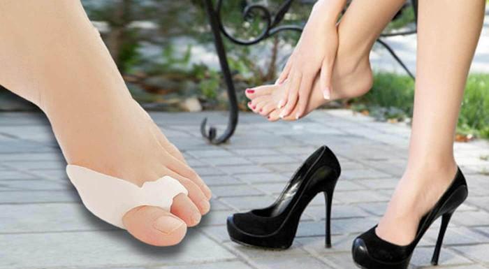 Fotka zľavy: Silikónová ortopedická pomôcka na zmiernenie vybočujúceho palca len za 4,99 € vám pomôže obnoviť správnu polohu prstov. V balení 2 kusy - pre pravú aj ľavú nohu. Bonus: 3+1 zdarma!