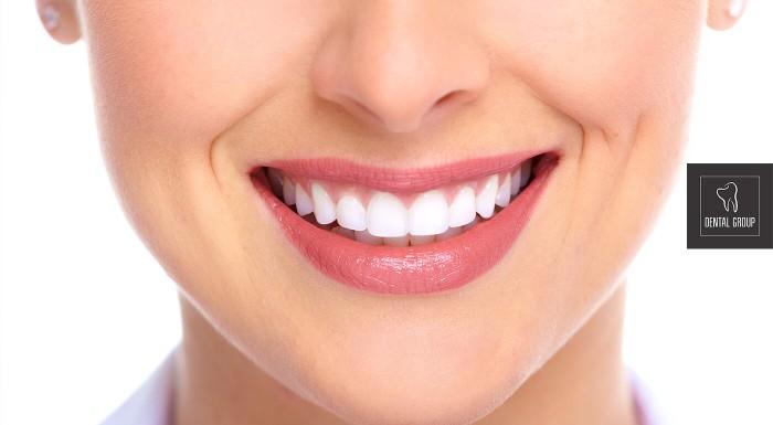 Profesionálne bielenie zubov Opalescence v Poprade
