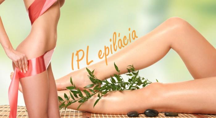 IPL epilácia prístrojom NORA - vyššia účinnosť, menší počet ošetrení!