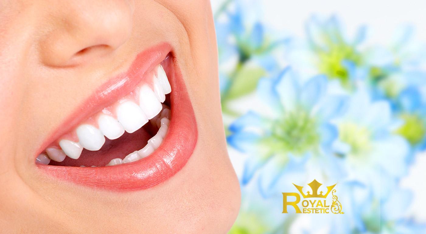 Bezperoxidové bielenie zubov v Royal estetic - urobte radosť vašim nádherným úsmevom každému naokolo