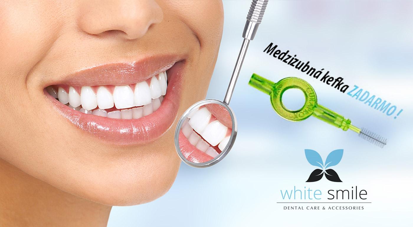 Dajte zdravým a žiarivo bielym zubom zelenú v ambulancii White Smile v Bratislave