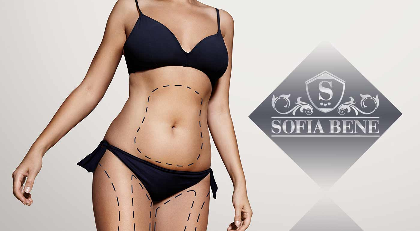 Laserová liposukcia a lymfodrenáž v Sofia Bene v Bratislave - bonus 3+1 grátis